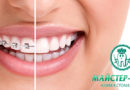 Майстер-Стом Центр – клініка стоматології: ідеальна посмішка для вашої дитини