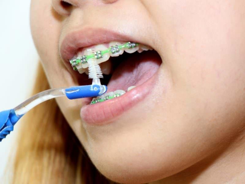 Спеціальні ортодонтичні зубні щітки Щітка для брекет-системи ee165da505e64